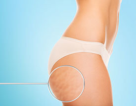 Anti-Cellulite-Behandlung Karlsruhe