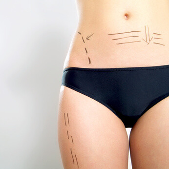 Liposuktion / Fettabsaugung
